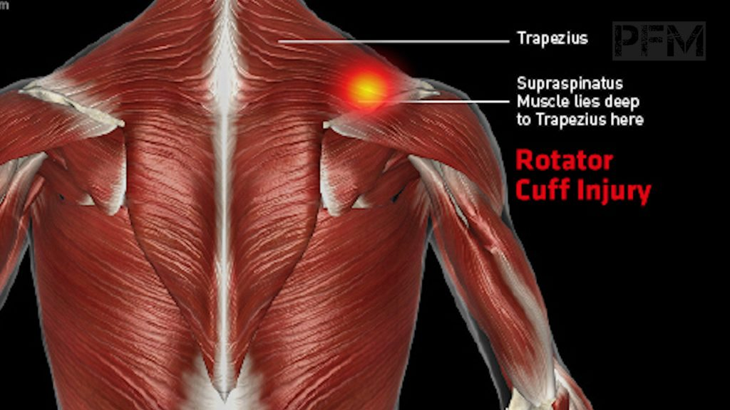 The Ultimate Guide On How To Heal Your Shoulder Pain Painfree Maverick