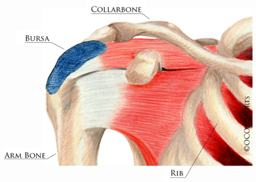 is your shoulder pain really a torn rotator cuff